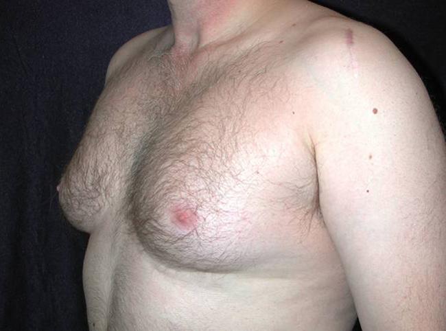 chubby nude anal gif