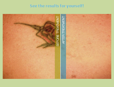 18 erased tattoo removal erased laser tattoo for Bath after tattoo