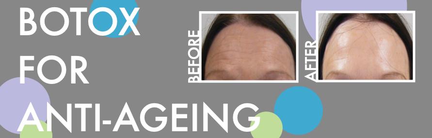 Botox for Anti-Ageing Main Image
