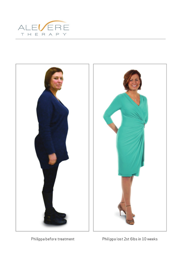philippa before and after the treatment - alevere weight loss