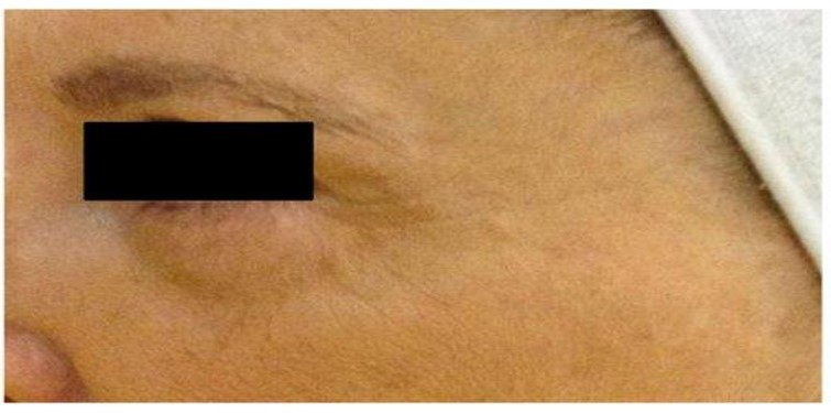 After Mesotherapy