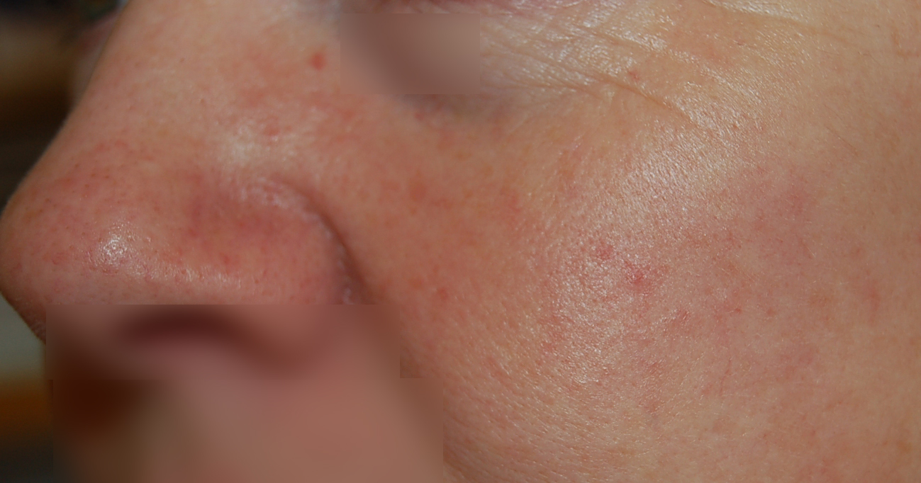 skin redness and rosacea