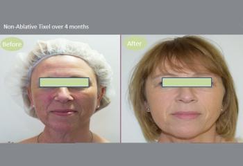 Tixel Skin Rejuvenation Treatment UK - Snowberry Lane