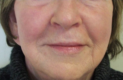 before radiofrequency face lifts