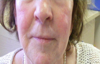after radiofrequency face lift